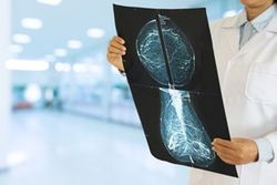 Самообследование молочных желез и ранняя диагностика рака