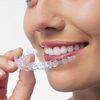 Элайнеры: эффективный способ преображения улыбки